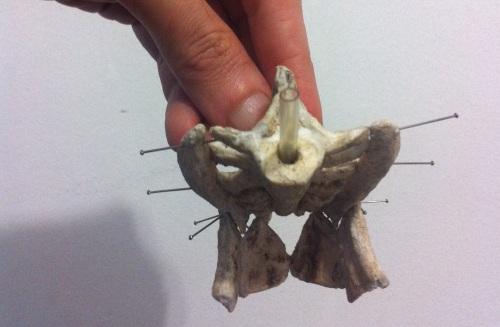 anterior with pelvis